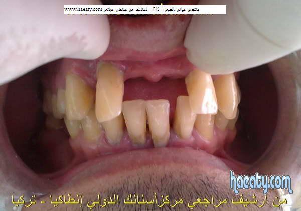 تجميل بروفيل الوجه والابتسامة وعلاقته بزراعة الأسنان