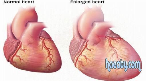 تضخم القلب 2014 ، مرض تضخم القلب 2014 ،  Enlarged heart disease