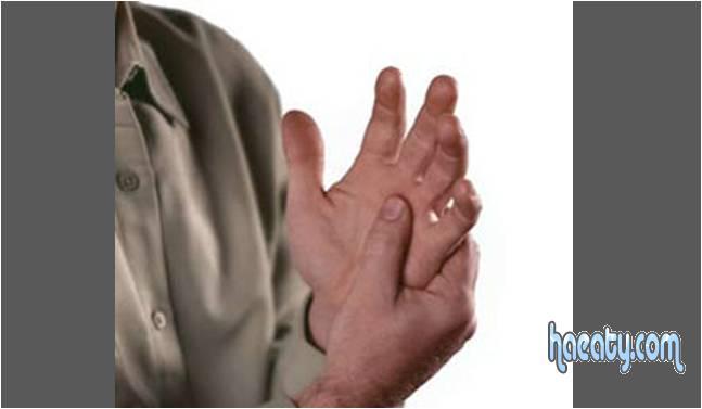 مرض الروماتويد 2014 ، مضاعفات وعلاج مرض الروماتويد 2014 ، Rheumatoid disease