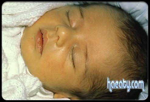 مرض الصفراء 2014 ، مرض الاطفال حديثي الولادة 2014 ، Yellow disease